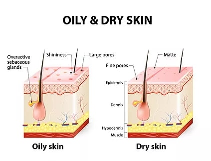 oily-dry-skin