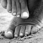 Fight skin fungus naturally